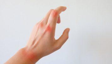 Aké môžu byť následky pri zanedbaní liečby boreliózy alebo reumy?